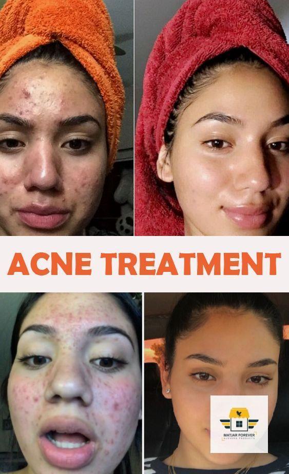 Acne group